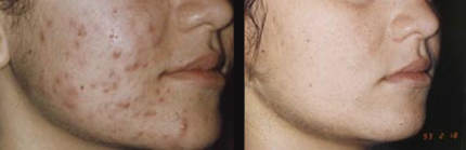 Salicylic peel. Photo before and after procedure