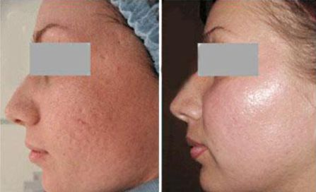 Glycolic peel. Photo before and after procedure