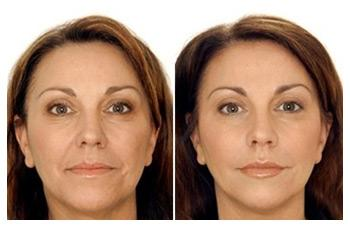 Retinoic acid peel. Photo before and after procedure