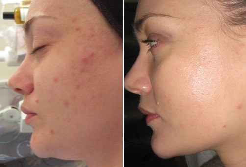 Green Peel. Photo before and after procedure