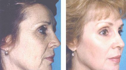 Phenol Peel. Photos before and after procedure