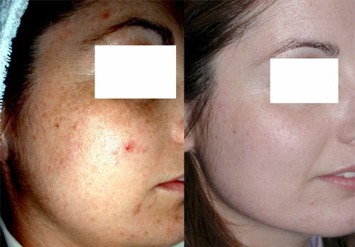 Phytic Peel. Photos before and after 4 procedures