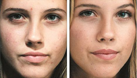 Microdermabrasion Mechanical Peel Peeling All About